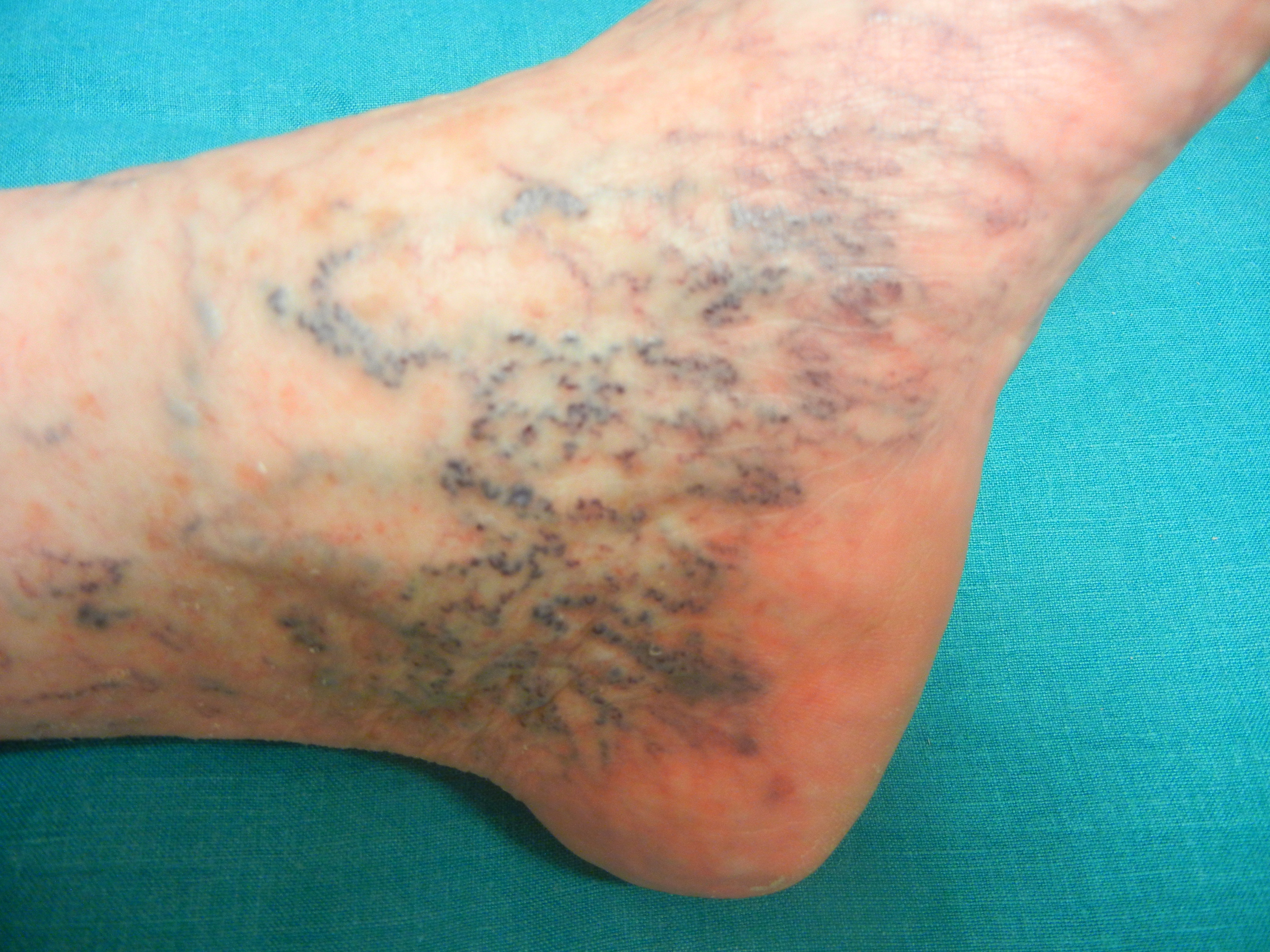 Retikularvarizem im Knöchelbereich