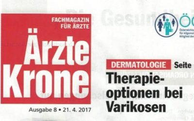 Therapieoptionen bei Varikosen